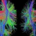 New study into traumatic brain injury aims to match therapy to individual patients